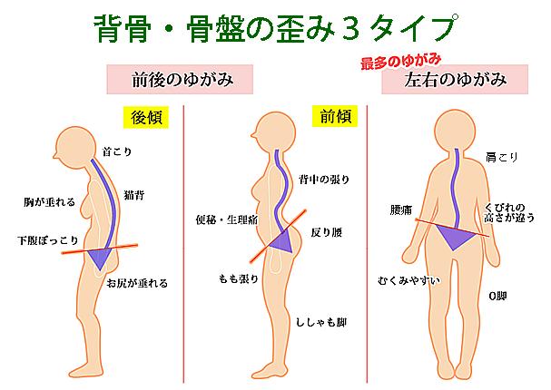 背骨・骨盤の歪み3タイプ